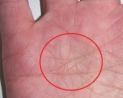 Star on the thumb  What does the star mean in the palm of